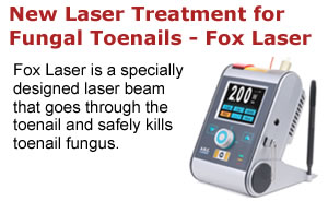 Fox Laser for Fungal Toenails